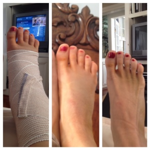 #1 - toes on day 3, before initial dressing was removed.  #2 - toes 72 hours post op after initial dressing removal, and #3, 9 days post op.