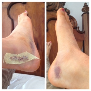 72 hours post op, I was allowed to take the dressing off and shower.